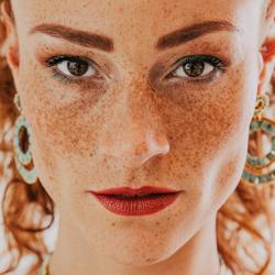 Freckles-By Martine van der Moolen-
