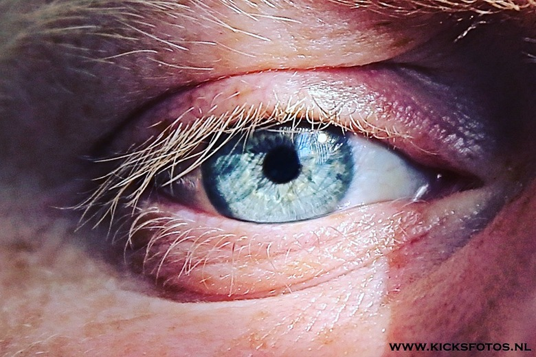 Blue Eye  - Door tegen het licht van de zon in te kijken bestaat ee een geplaagde licht val in het oog waar door de structuur van je oogbal en je pupi