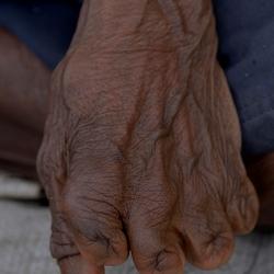 Vrouwenhand met afgehakte vingerkootjes