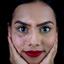 Vitiligo model