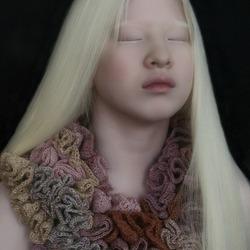Albinomeisje uit China
