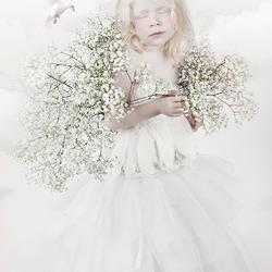 little albino girl
